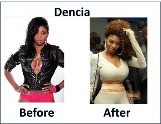 Dencia-Skin-Bleaching