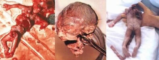 Aborted Fetus