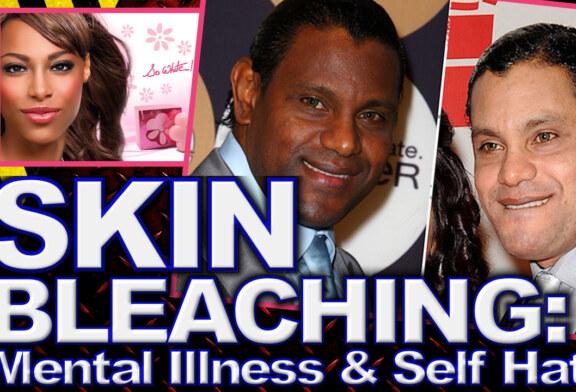 Skin Bleaching: Mental Illness & Self Hate! - The LanceScurv Show