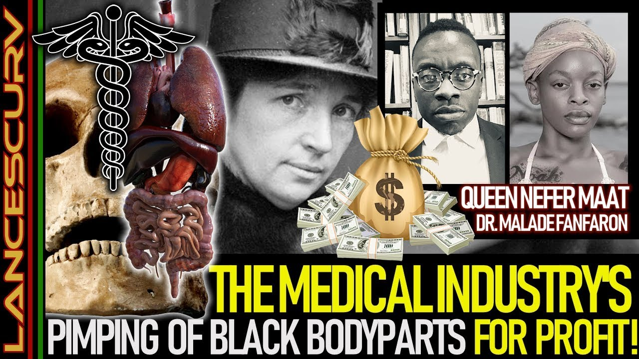 THE MEDICAL INDUSTRY'S PIMPING OF BLACK BODYPARTS FOR PROFIT! - The LanceScurv Show